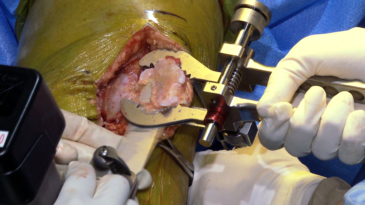 Patellar Osteotomy