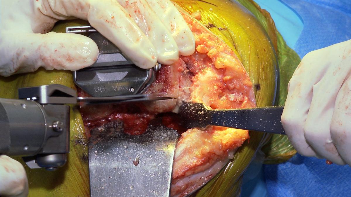 Posterior Osteotomy