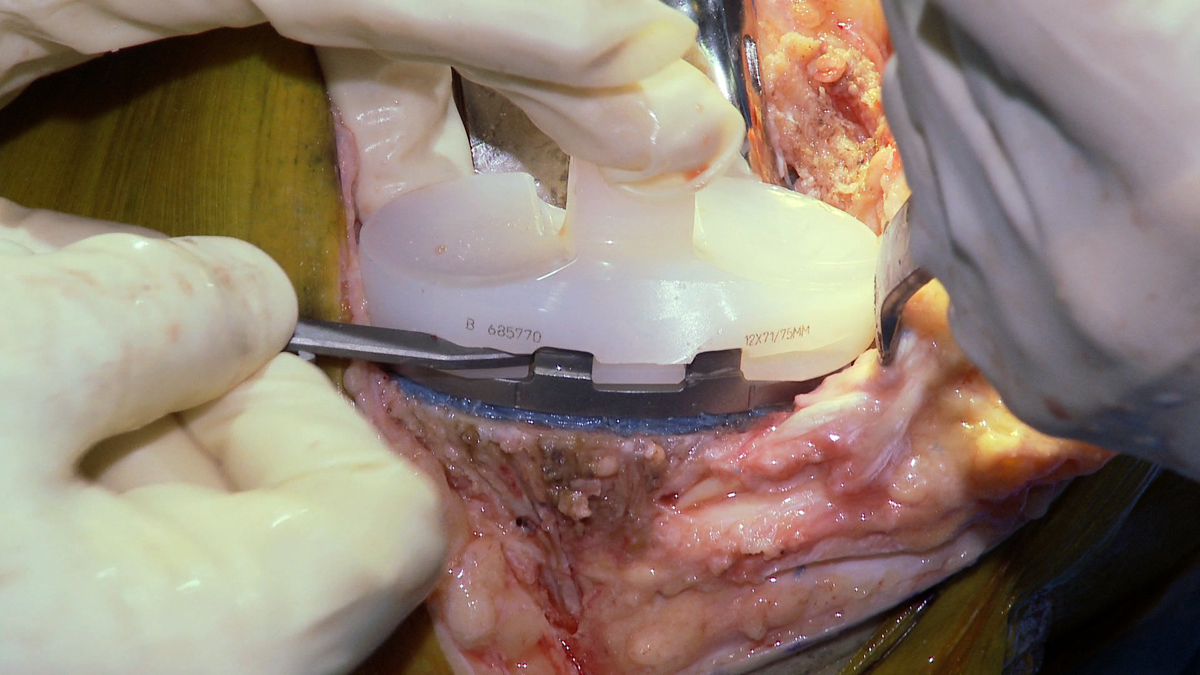Tibial Tray Locked Into Tibial Component